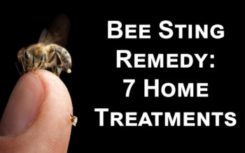 Bee Sting Remedy: 7 Home Treatments