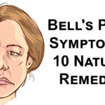 bells palsy FI