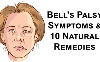 Bell's Palsy Symptoms & 10 Natural Remedies