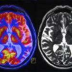 brain generosity FI
