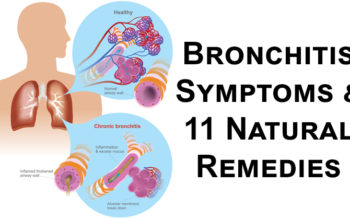 Bronchitis Symptoms & 11 Natural Remedies