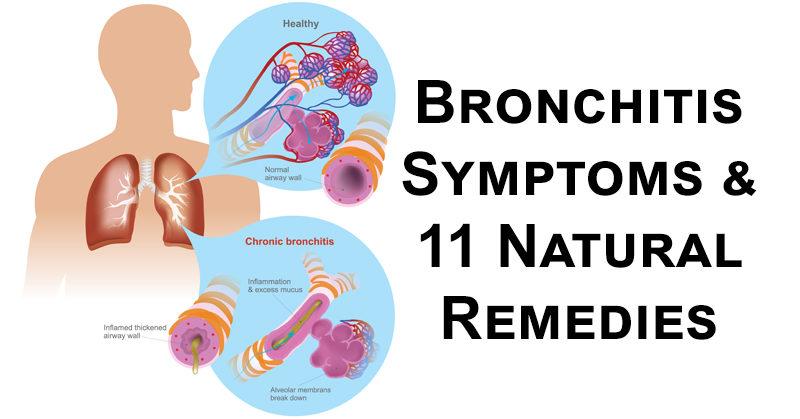 bronchitis FI02