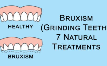 Bruxism (Grinding Teeth): 7 Natural Treatments