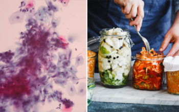 The Candida Diet: Foods To Eat & Avoid