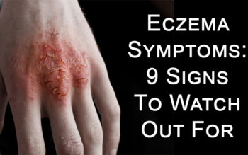 Eczema Symptoms: 9 Signs To Watch Out For