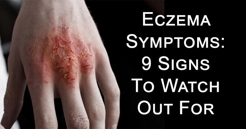 eczema symptoms FI