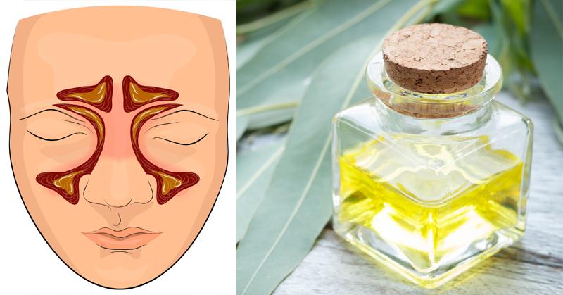 eucalyptus oil FI