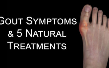 Gout Symptoms & 5 Natural Treatments