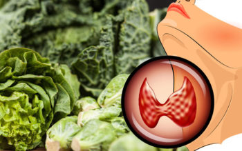 Hypothyroidism Diet: Foods To Eat & Avoid