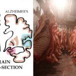 meat alzheimers FI