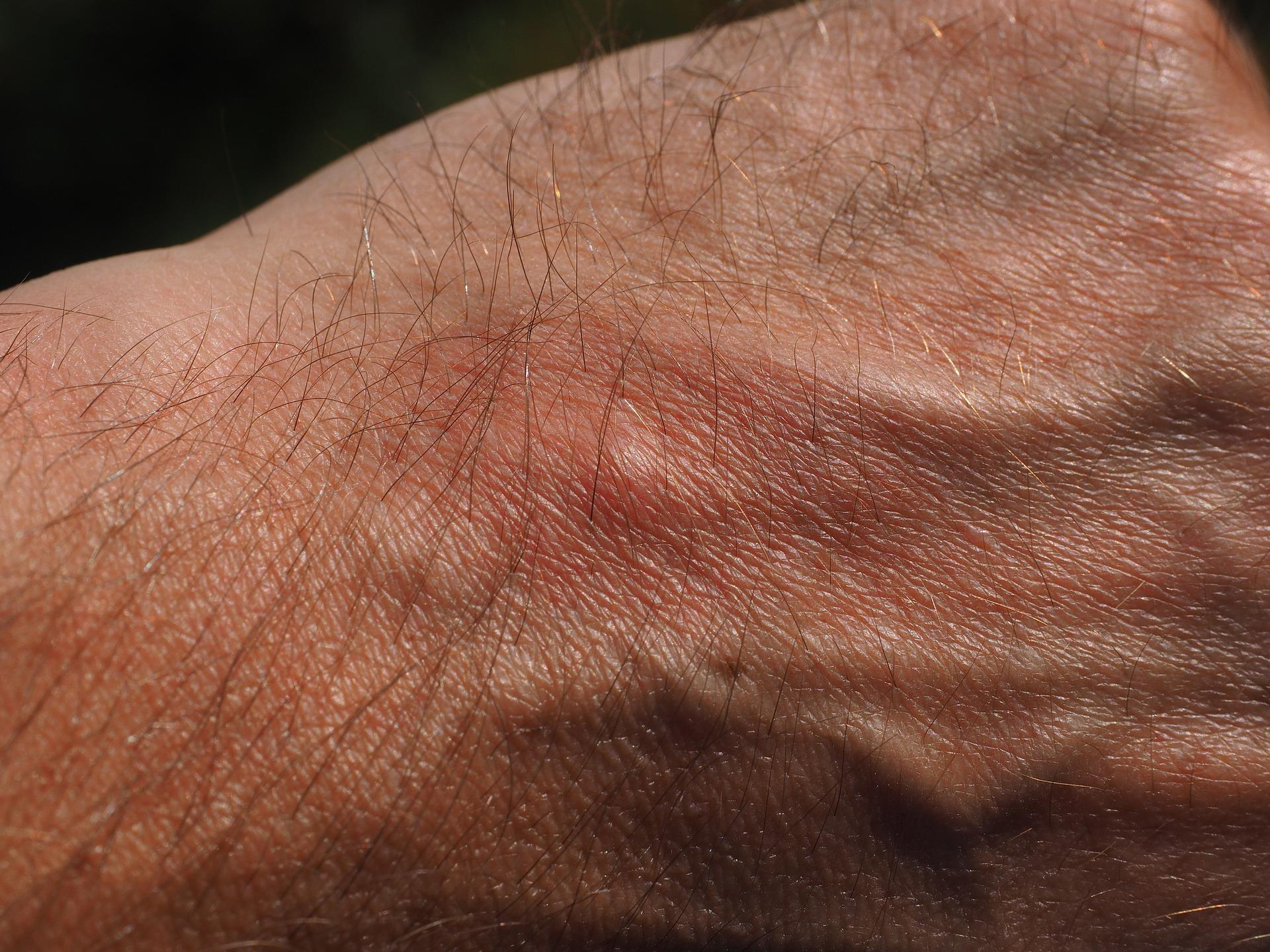 Symptoms Of Flea Bites Photo