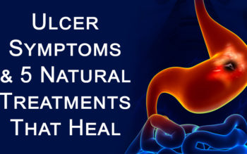 Ulcer Symptoms & 5 Natural Treatments That Heal