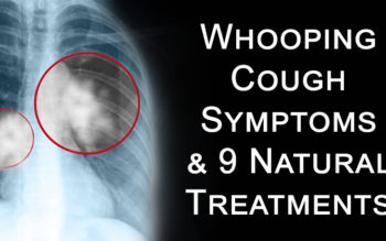Whooping Cough Symptoms & 9 Natural Treatments
