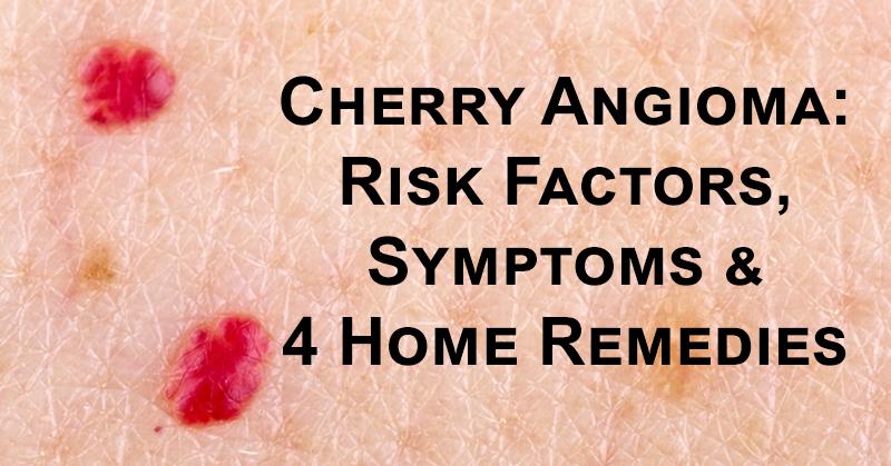 Cherry Angioma FI