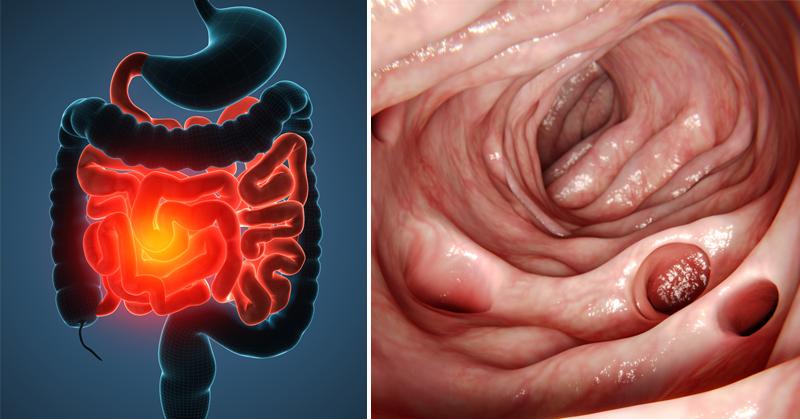 Diverticulitis Symptoms FI