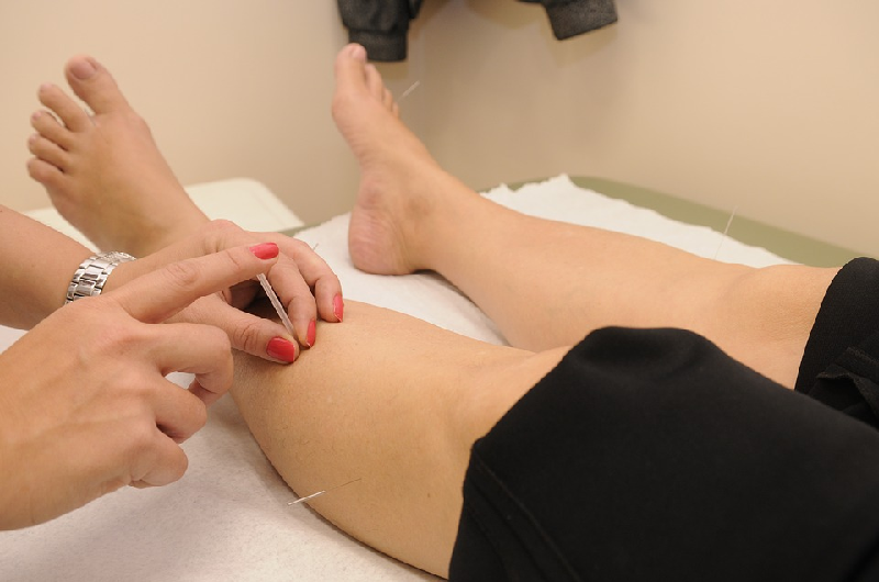 hives acupuncture