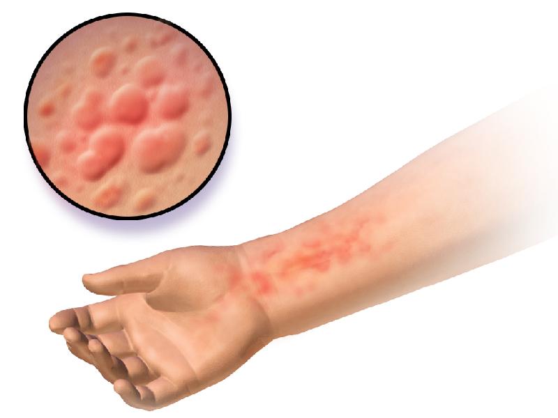 hives rash