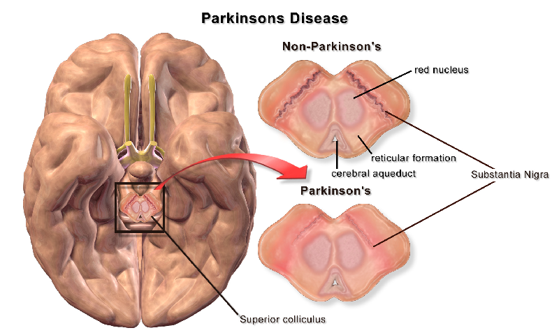 Parkinson's disease brain