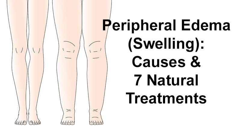 Peripheral Edema Treatment Natural