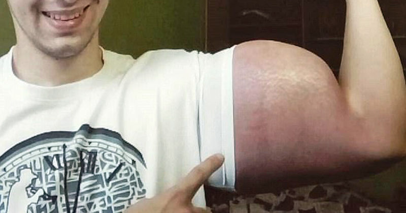 bodybuilder arm FI