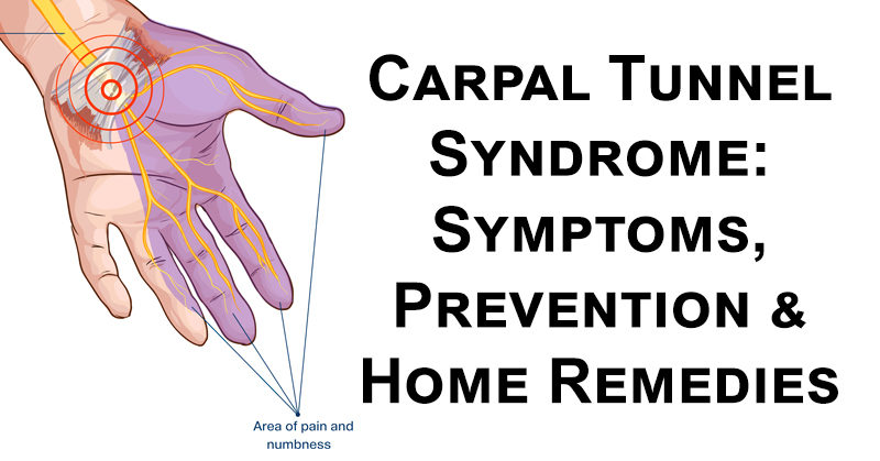Carpal Tunnel Syndrome Fact Sheet