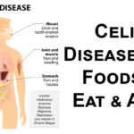 celiac disease FI