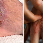 cellulitis symptoms FI