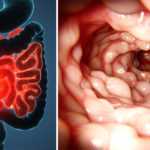 crohn disease symptoms FI