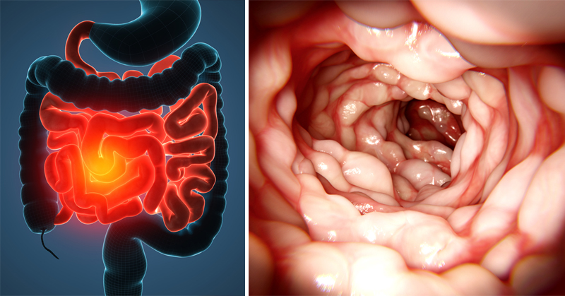 Crohns disease is a type of inflammatory bowel disease IBD that may affect any part of the gastrointestinal tract from mouth to anus Signs and symptoms often