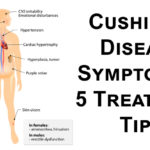 cushings disease FI