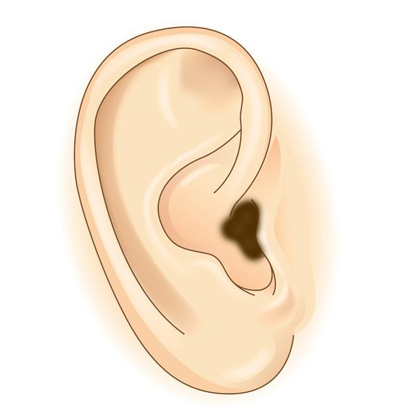 earwax health