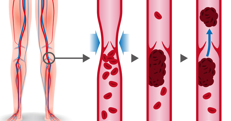 deep vein thrombosis FI