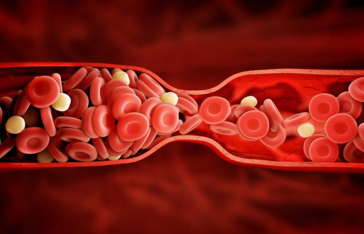 deep vein thrombosis blood clot
