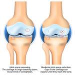 degenerative joint disease FI