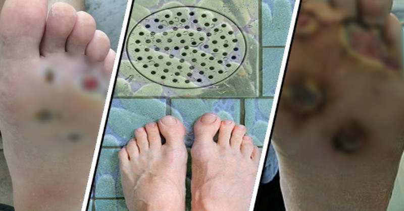 Image result for WARNING: Man Almost Loses Foot After Catching Flesh-Eating Disease From Public Location