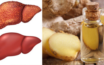 Ginger Essential Oil: 10 Health Benefits