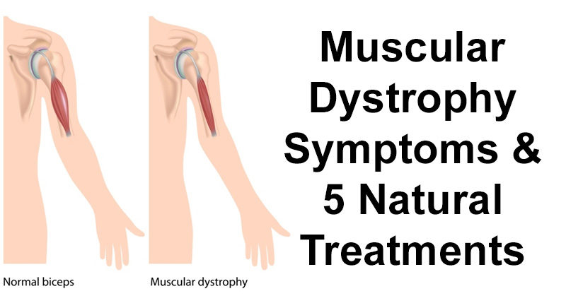 The signs symptoms and treatment of muscular dystrophy