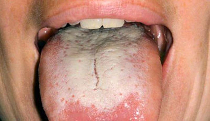 oral thrush tongue