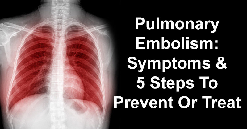 Pulmonary Embolism Symptoms 5 Steps To Prevent Or Treat