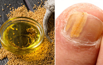 Mustard Essential Oil: 10 Health Uses