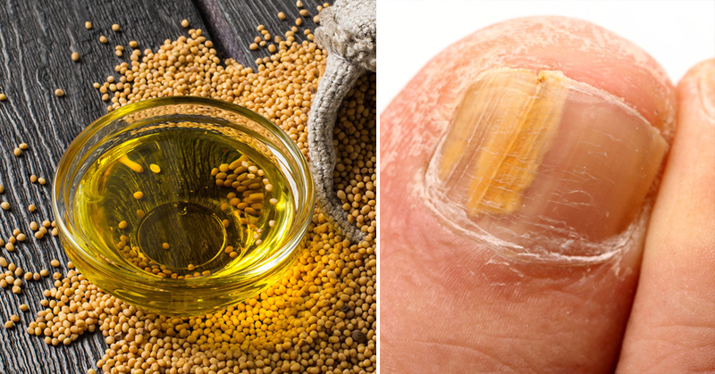 how to use mustard seed for arthritis