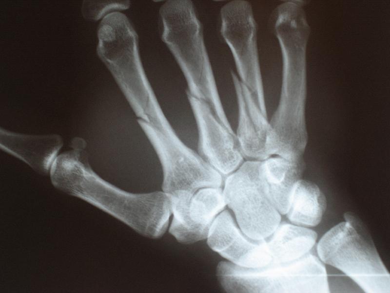 Rehmannia broken bones