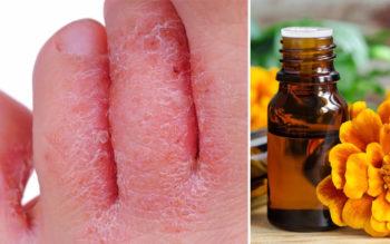 Tagetes Essential Oil: 9 Health Uses