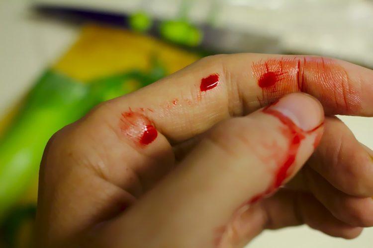 Cumin essential oil wound healing