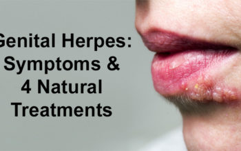 Genital Herpes: Symptoms & 4 Natural Treatments