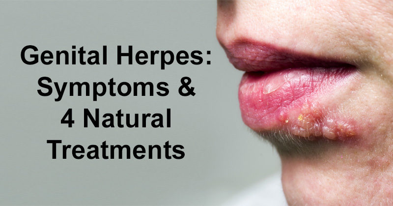 Thank Natural cure for herpes