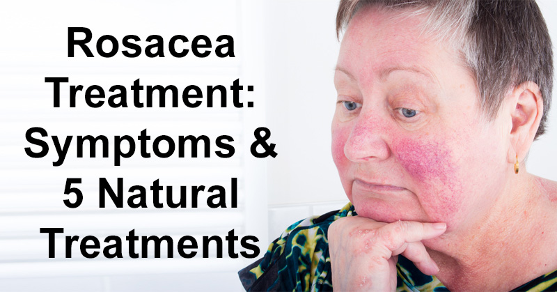 Rosacea Treatment Symptoms 5 Natural Treatments David Avocado
