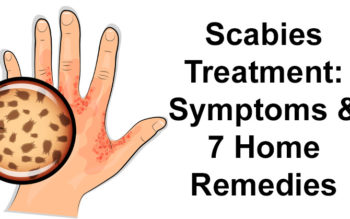Scabies Treatment: Symptoms & 7 Home Remedies