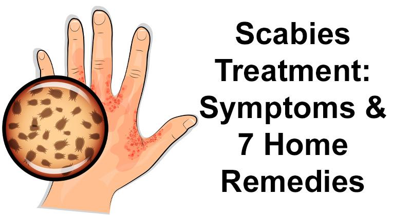 Scabies Treatment: Symptoms & 7 Home Remedies - DavidWolfe com