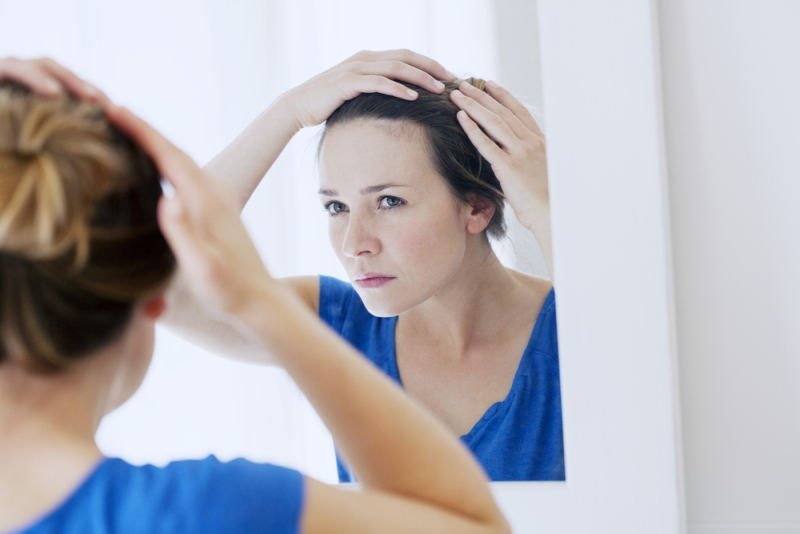 seborrheic dermatitis hair